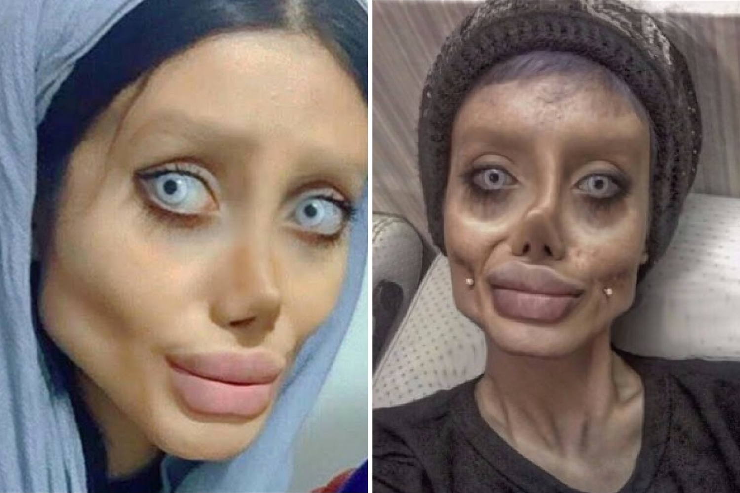 Girl who underwent surgery to look like Angelina Jolie was