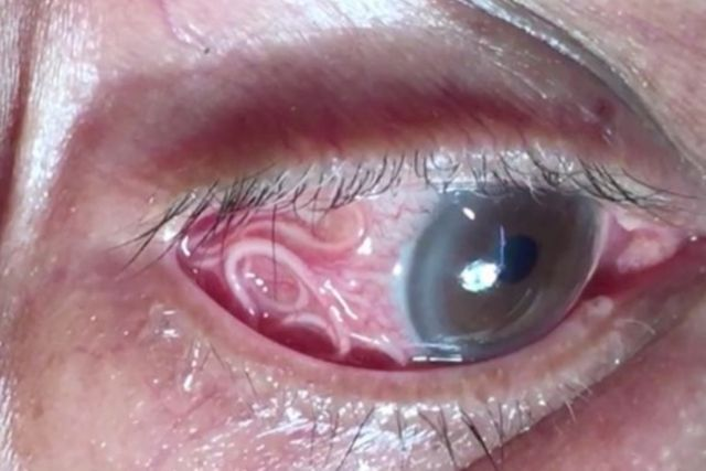 Shocking video shows doctor removing tape worm from man's eye