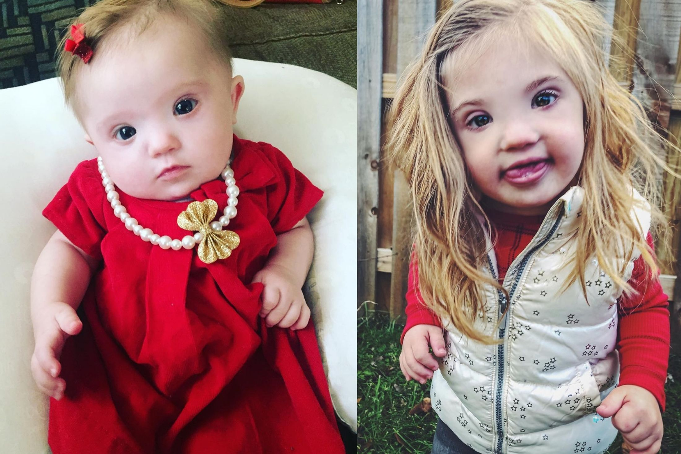 Mother Of Beautiful Down Syndrome Girl On How She