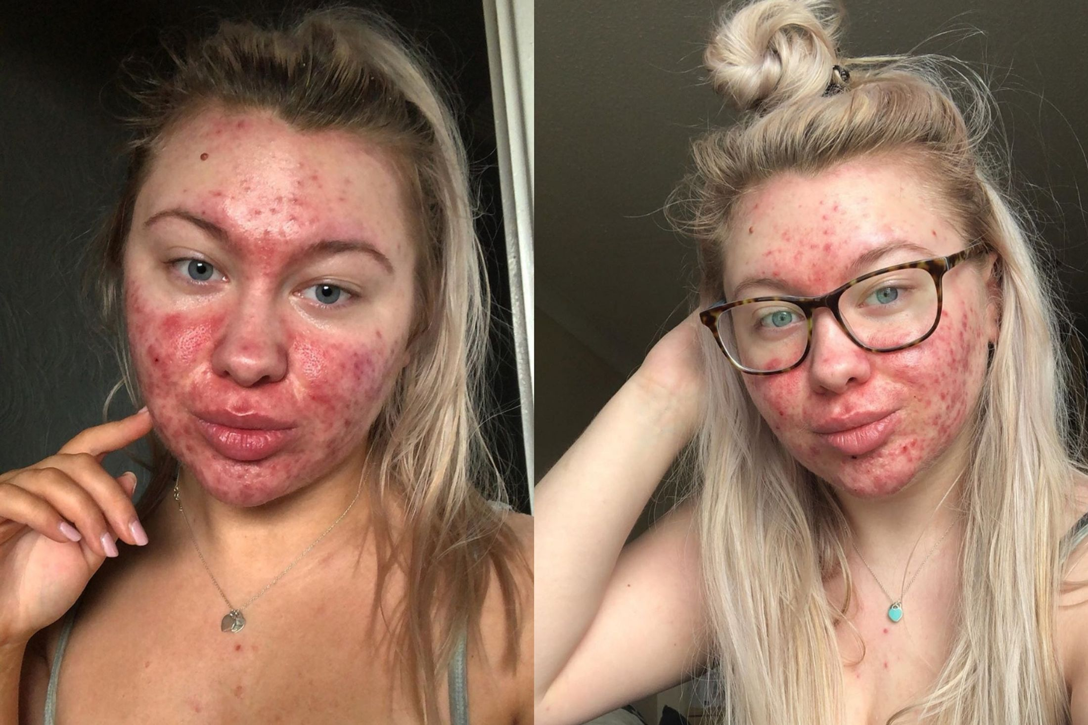 Teenager with severe cystic acne shares her skin struggles on Instagram