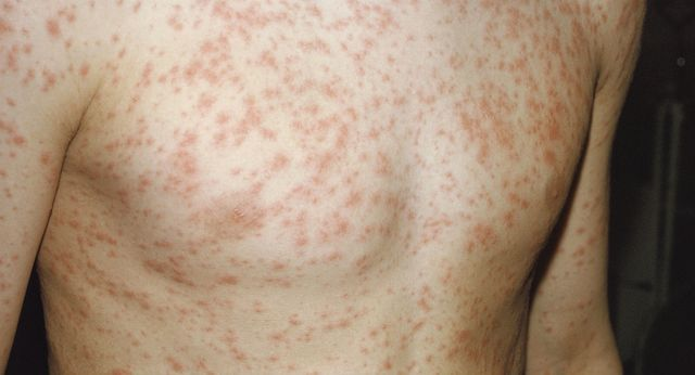Sydneysiders warned over measles outbreak