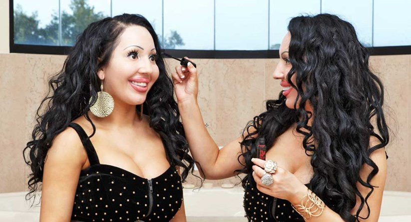 Most twins worlds surgery identical before Against the