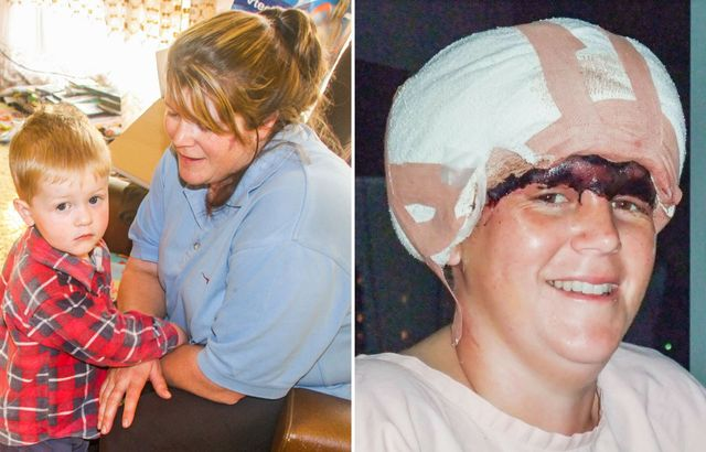 Pregnant mum SCALPED in horror farm accident tells of her ordeal and the heroes who saved her