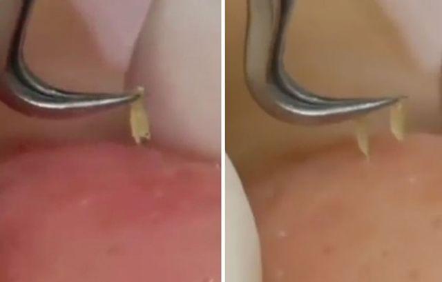 Mesmerising close-up video show tweezers pulling blackheads
