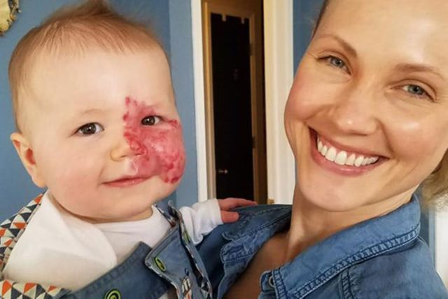 Mum pens powerful post after baby born with port-wine stain